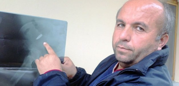 22 yıldır PKK kurşunuyla yaşıyor