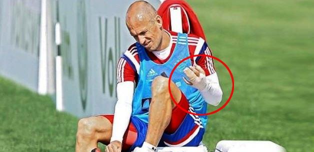Yok artık! Robben'e timsah saldırdı