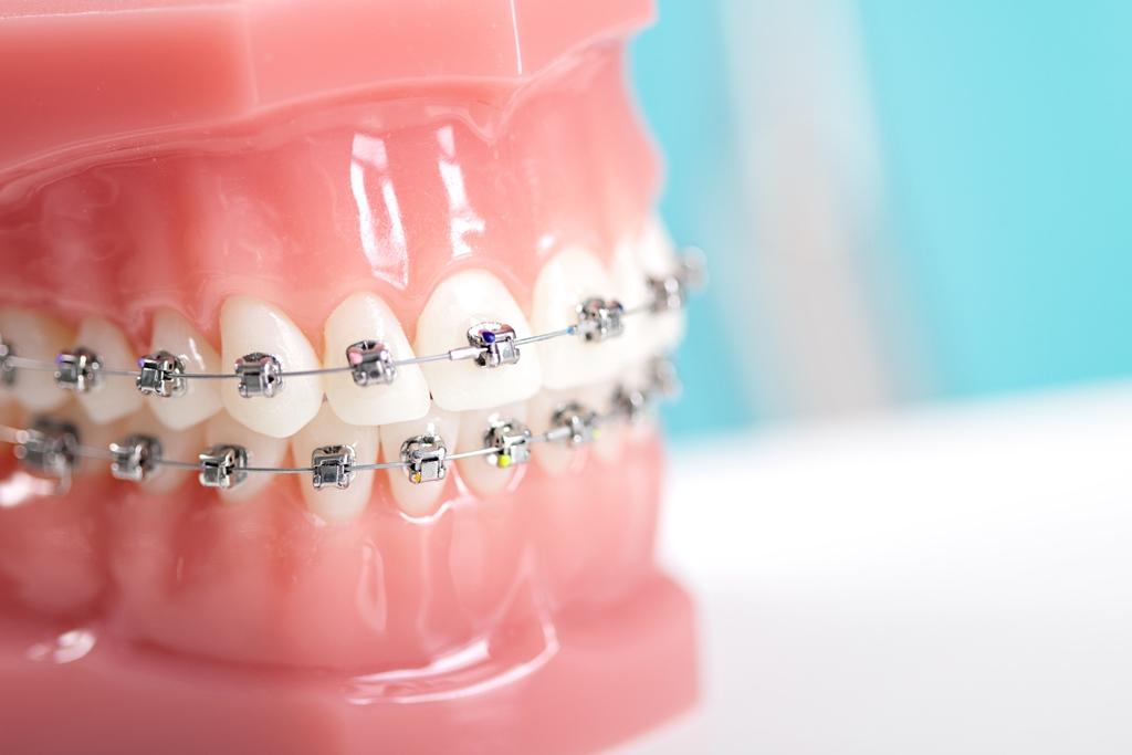 Diş Telinin Yaşı Yok!
